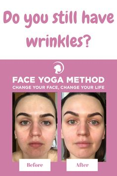 Do you want to look younger and more attractive? Do you know the secrets of face yoga? In this post, you will learn how facial exercises can change your life.  #faceyogamethod, #facialexercises, #facialexercisesfor women, #facialexercisesformen, #facialexercisestotightenyourskin, #faceexercise, #faceyoga, #facialmassage, #facialrejuvenation,#lookyounger Facial Exercises For Men, Face Exercises, Good Health Tips, Health And Beauty Tips, Mental Health Law, Face Yoga Method, Natural Face Lift, Face Change, Facial Rejuvenation