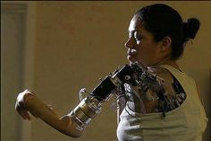 Claudia Mitchell - first woman to have a bionic arm. | See More Pictures