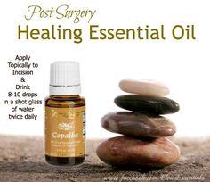 Young Living Essential Oils: Copaiba for Post Surgery Healing. http://www.essentialoilsenhancehealth.com/