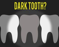 Bumped tooth gone dark? While not usually a cause for concern we'd love to take a look and shed some light on the problem for you! Oral Health, Dental Health, Dental Care, Pearland Tx, Rancho Santa Margarita, Pediatric Dentist, Mission Viejo, Healthy Teeth, 4 Kids