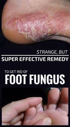 Interested in a reliable natural treatment for athlete's foot? These home remedies for athlete's foot should get your attention. Learn about my athletes foot natural remedy. Toe Fungus Remedies, Itching Remedies, Foot Remedies, Cold Home Remedies, Natural Health Remedies, Herbal Remedies, Itchy Feet Remedy, Athletes Foot Cure, Foot Fungus Treatment