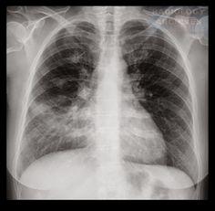 Λοβώδης Πνευμονία (Δεξιού Μέσου Λοβού) > Lobar Pneumonia (Right Middle Lobe)