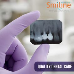 Smiline Dental hospital is one of the largest and well equipped  hospitals  in madhapur, Hi-tech city & Hyderabad.