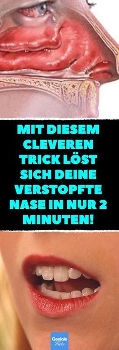 Mit diesem cleveren Trick löst sich deine verstopfte Nase in nur 2 Minuten! Ver… With this clever trick, your stuffy nose dissolves in just 2 minutes! Get stuffy nose quickly. Fitness Workouts, Fitness Tips, Daily Health Tips, Health And Wellness, Health And Beauty, Beauty Skin, Herbal Remedies, Natural Remedies, Infection Des Sinus