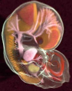 Así es un embrión humano de 44 días (resonancia magnética)