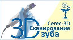 Восстановление зуба  Сканирование 3D камерой  Этап второй