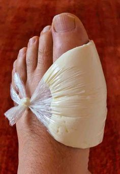 5 Ways To Rid Your Joints Of Uric Acid Crystals And Eliminate Gout - Just Naturally Healthy - Hair Beauty - knittingo Health And Beauty, Health And Wellness, Health Tips, Natural Health Remedies, Herbal Remedies, Bunion Remedies, Get Rid Of Bunions, Uric Acid, Medical Help