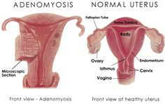 Adenomyosis Much like Fibroid tumors, Adenomyosis produces physical, emotional and psychological challenges that can significantly effect a woman's lifestyle.