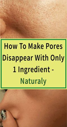 Learn how to make pores disappear naturally using only 1 ingredient. Most people with oily skin suffer from large pores which is caused by d. Beauty Tips For Face, Natural Beauty Tips, Natural Skin Care, Face Tips, Beauty Care, Beauty Skin, Beauty Hacks, Diy Beauty, Beauty Ideas