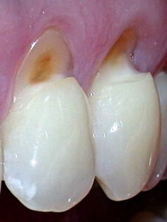 Tooth abfraction appears as enamel wear  at the cemento-enamel junction (CEJ)