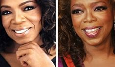 Celebrity Oprah Winfrey before and after plastic surgery nose job / rhinoplasty. Celeb nosejob images before and after plastic surgery Extreme Plastic Surgery, Celebrity Plastic Surgery, Nose Reshaping, Celebrities Before And After, Sagging Skin, New Career, Oprah Winfrey, Celebrity Photos, Celebs