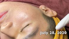 Pimple Popping, July 28, Pimples, Spa, Acne Treatment, Youtube, Cooking, Youtubers