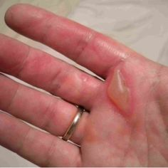 Eight Excellent Home Remedies For Burns on Fingers