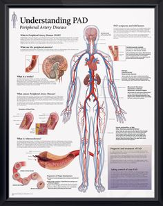 Understanding PAD anatomy poster defines peripheral artery disease, causes, and risk factors. Cardiovascular chart for doctors and nurses. Peripheral Artery Disease, Vascular Disease, Pituitary Gland, Cardiac Nursing, Pharmacology Nursing, Medical Posters, Nursing Tips, Nursing Board, Ob Nursing