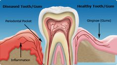 Diabetic patients are more likely to develop periodontal disease, which in turn can increase blood sugar and diabetic complications.
