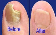 Don't let nail fungus aggravate. Latest report on most effective finger or toe nail fungus treatment to get rid of it quickly based on user results. Vicks For Toenail Fungus, Toenail Fungus Treatment, Nail Treatment, Wine Making Supplies, Wine Making Kits, Laser Eye Surgery Cost