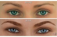 Permanent Cosmetics  also known as Permanent Makeup is a form of cosmetic tattooing used to enhance facial features.