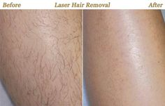 Looking for Laser Hair Removal in the Northern Suburbs of Melbourne? Skiin is a conveniently located provider of Melbourne Laser Hair Removal. Laser Aesthetics, Skin Aesthetics, Best Laser Hair Removal, Hair Removal Diy, Laser Skin Rejuvenation, Beard Growth Oil, Skin Resurfacing, Unwanted Hair, Transformation Body
