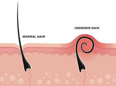Tea tree oil is an efficient natural product that can help in getting rid of ingrown hair. Here we shall discuss on Effective Ways To Use Tea Tree Oil for Ingrown Hair