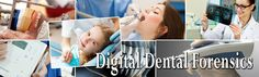 Affordable treatments for Dental Implant