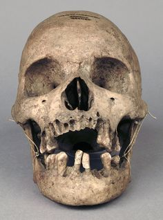 human skull | skeleton skull bones | human