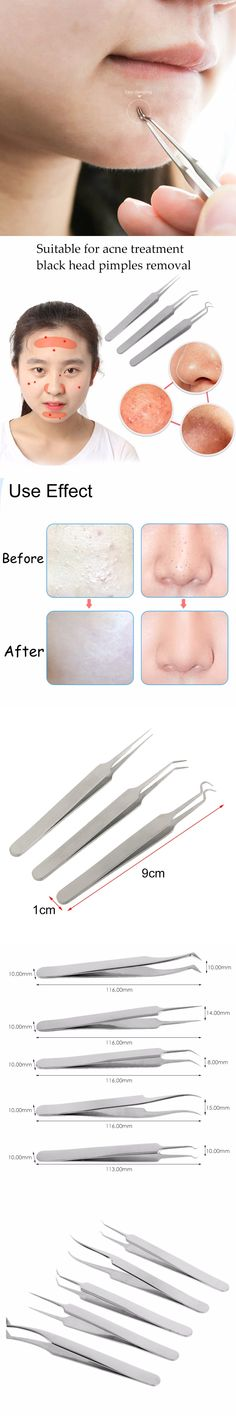 Stainless Steel Blackhead Whitehead Remover Needle Kit Blemish Acne Pimple Extractor Makeup Tool Face Skin Care Tools