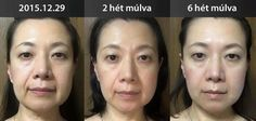 ageLOC Me Amazing results in 8 weeks!!!! Do you see the results? Of course you see!