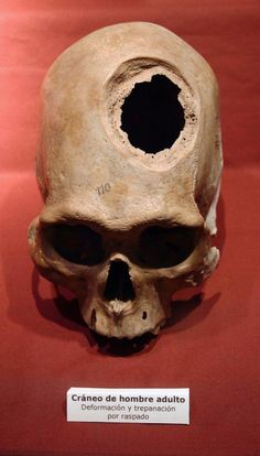 Pre-Colombian elongated and trepanned skull showing signs of bone regrowth after the trepanation. From the collection of the Lima National Museum of Archaeology, Anthropology, and History.