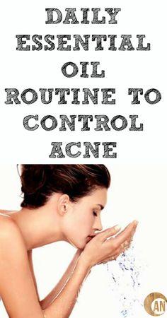 Daily Essential Oil Routine To Control Acne #acne #essentialoils