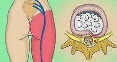 L'esercizio che elimina il dolore sciatico in pochissimi minuti   Rimedio Naturale