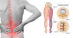 Étirements de yoga simples pour soulager une douleur sciatique chronique Le nerf sciatique :(ou ischiatique , ou grand sciatique) est le plus gros et le