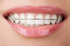How to straighten your teeth at home without braces? | pretty gossip