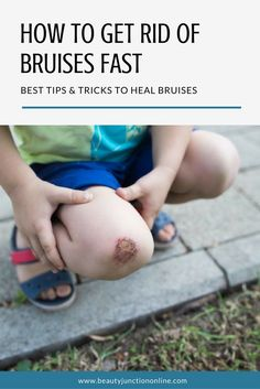 Discover how to get rid of bruises fast and effectively!