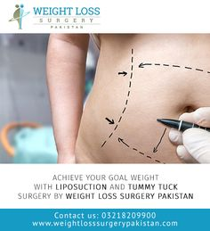Achieve your Goal Weight with Liposuction and Tummy Tuck Surgery by Weight Loss Surgery Pakistan Vi Achieve your Goal Weight with Liposuction and Tummy Tuck Surgery by Weight Loss Surgery Pakistan Vi Inland Cosmetic Surgery Dr nbsp hellip makeover tattoo Tummy Tuck Surgery, Surgery Doctor, Congestion Relief, Mommy Makeover, Tummy Tucks, Weight Loss Surgery, Liposuction, Achieve Your Goals, How To Slim Down