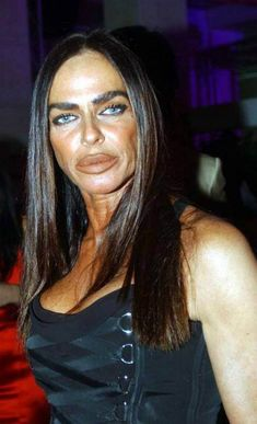 plastic surgery 26 I think their plastic surgeon used a butter knife (28 photos)