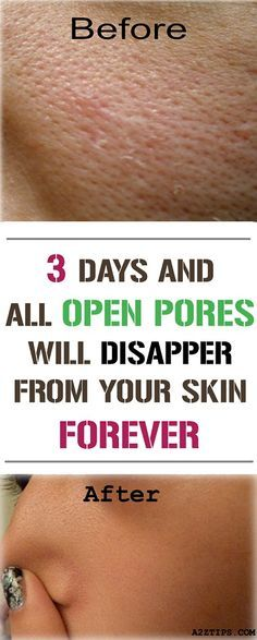 3 Days and All Open Pores Will Disappear From Your Skin Forever By Using These Homemade Solutions - NZ Holistic Health Home Beauty Tips, Beauty Hacks, Diy Beauty, Beauty Skin, Health And Beauty, Beauty Care, Skin Toner, Tips Belleza, Belleza Natural