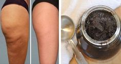 Additionally, you can likewise establish cellulite if you don't work out sufficient or if you don't view what you eat really carefully. Food rich in carbohydrates, fats, and low-fiber food increase fat storage in the body and triggers cellulite. Cellulite Scrub, Cellulite Cream, Cellulite Remedies, Reduce Cellulite, Cellulite Exercises, Peau D'orange, Banana Drinks, Peeling, Anti Cellulite