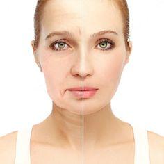 Cuidados com Toxina Botulínica com efeitos visíveis.  Provoca um miorrelaxamento e reduz o efeito das rugas de expressão ou das linhas de envelhecimento. Proporcionando uma aparência mais jovem.