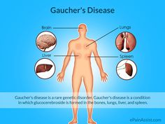 Harmful Effects of Gaucher's Disease Gaucher's Disease, Rare Genetic Disorders, Metabolic Disorders, Skin Specialist, Signs And Symptoms, Pediatrics, Genetics, Investigations, Metabolism