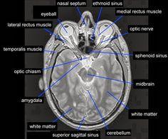 Brain Anatomy, Medical Anatomy, Human Anatomy And Physiology, Radiology Student, Radiology Imaging, Radiology Humor, Medical Radiography, Mri Brain, Interventional Radiology