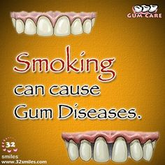 According to the American Dental Association (ADA), people who smoke cigarettes and chew tobacco are more likely to have plaque and tartar buildup and show signs of advanced gum disease.