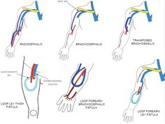 Av Fistula | ... venous hemodialysis fistula: a vascular surgeons perspective - AJUM