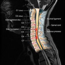 Normal cervical spine mri mri scans pinterest cervical spine injury mri illustration ccuart Image collections