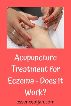 Can Acupuncture Cure Eczema? (PLUS My Experience!) Severe Eczema, Randomized Controlled Trial, Traditional Chinese Medicine, Does It Work, Liking Someone, Alternative Medicine, Acupuncture, Helping Others