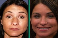 Jennifer's 35th birthday is fast approaching, and she is looking for a skin pick-me-up, since sun damage has caused wrinkles to appear around her eyes and forehead. She heard about Dysport, a new alternative to Botox, and wants to know the difference between the two.