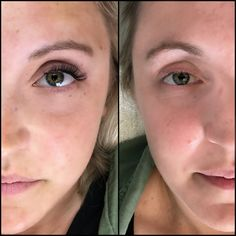 Amazing before and after of a full set of eyelash extensions. Very natural lengths make her eyes pop. http://www.maggslashes.com #lashes #lash #lashartist #eyelashextensions #volumelashes #beauty #eyelashes