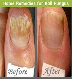 Home Remedies For Nail Fungus   Medi Tricks