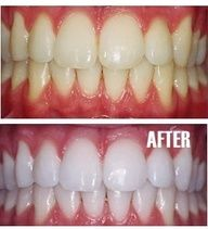 Make Your Teeth White at Home... Little bit of toothpaste in a cup + 1 tsp baking soda + 1 teaspoon hydrogen peroxide.