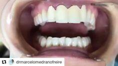 @drmarcelomedranofreire #Repost @drmarcelomedranofreire with @repostapp ・・・ Decídete a cambiar tu vida con solo cambiar tu sonrisa con tan solo un blanqueamiento y 4 carillas de porcelana E-max tendrás la sonrisa de tus sueños Llámanos al 2-836826 o escríbenos por más información al 0990755754  en el km 1.5 Via samborondon edificio Office center. #belleza #estetica #salud #follow #bestoftheday #F4F #Follow #Followme #L4L #Like4Like #belleza #salud  #carillas  #samborondon #guayaquil #venners…