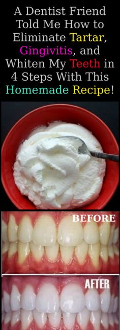 A Dentist Friend Told Me How to Eliminate Tartar Gingivitis .- A Dentist Friend Told Me How to Eliminate Tartar Gingivitis and Whiten My Teeth in 4 Steps With This Homemade Recipe - Teeth Health, Dental Health, Oral Health, Healthy Teeth, Healthy Tips, Dental Care, Health Diet, Face Health, Health Fitness